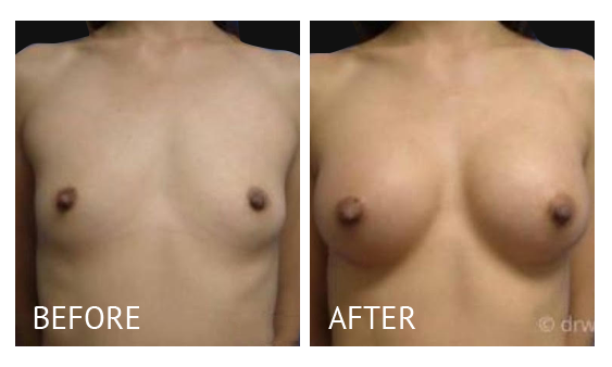 """Best cost breast augmentation before and after in Manila Philippines #13"