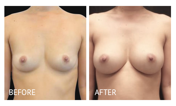 Best cost breast augmentation before and after in Manila Philippines #19