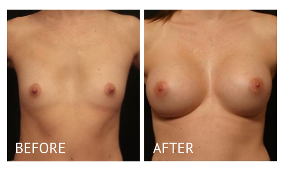 """""""Best cost breast augmentation before and after in Manila Philippines #1"""