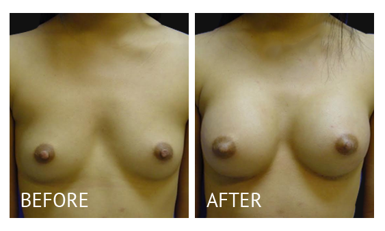 Best cost breast augmentation before and after in Manila Philippines #20