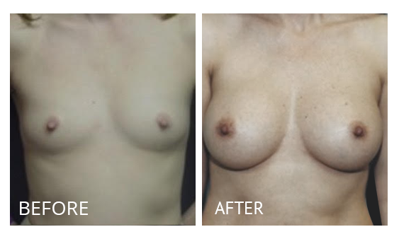 The Breast Surgery Center Philippines Best cost breast lift before and after in Manila Philippines #21