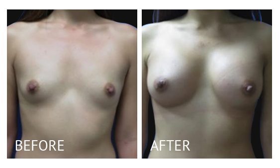 """Best cost breast augmentation before and after in Manila Philippines #3"