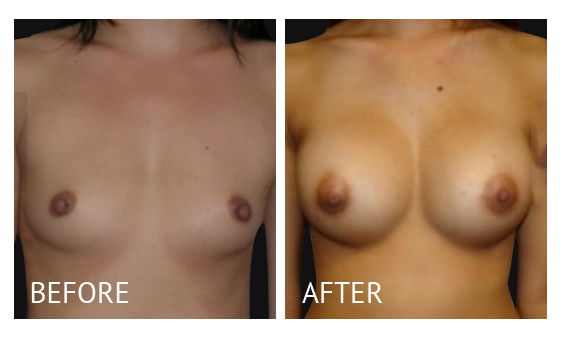 """Best cost breast augmentation before and after in Manila Philippines #6"