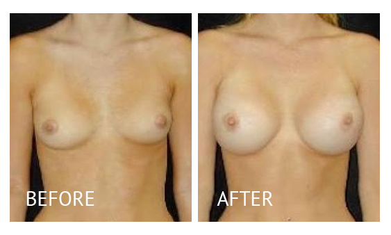 Best cost breast augmentation before and after in Manila Philippines #10