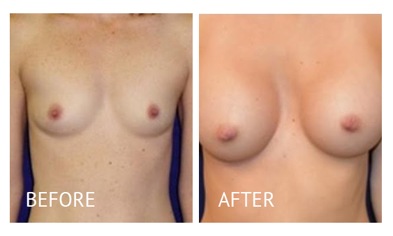Best cost breast augmentation before and after in Manila Philippines #12