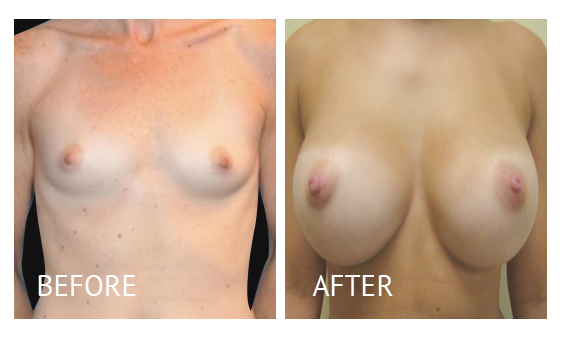 Best cost breast augmentation before and after in Manila Philippines #15