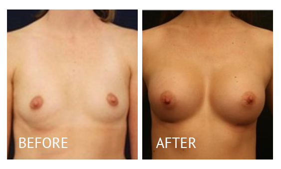 Best cost breast augmentation before and after in Manila Philippines #2