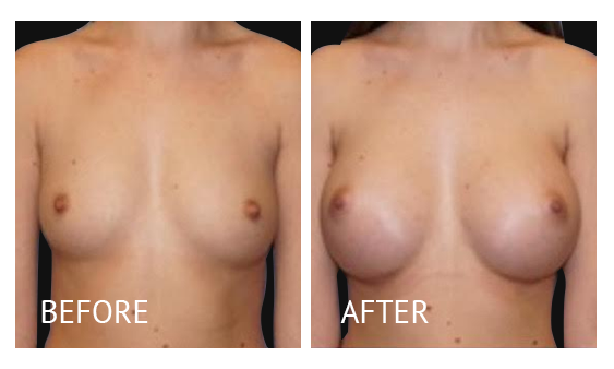 Best cost breast augmentation before and after in Manila Philippines #4