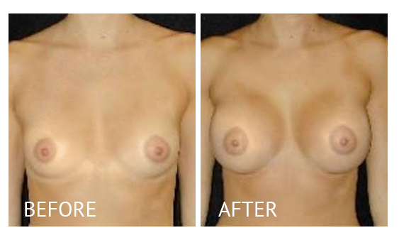 Best cost breast augmentation before and after in Manila Philippines #5