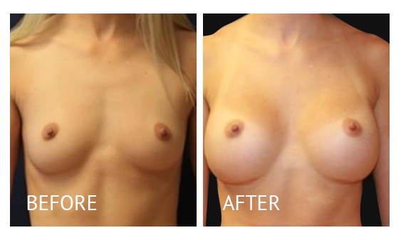 Best cost breast augmentation before and after in Manila Philippines #7