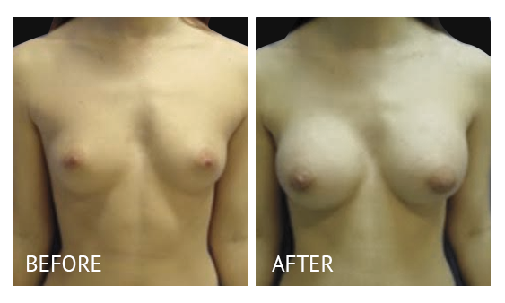 Best cost breast augmentation before and after in Manila Philippines #9