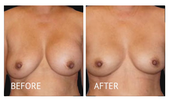 Best cost breast implant removal before and after in Manila Philippines #1