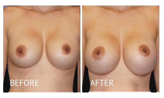 """Best cost breast implant removal before and after in Manila Philippines #10"