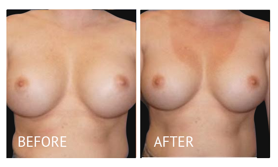 Best cost breast implant removal before and after in Manila Philippines #2