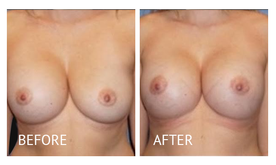 Best cost breast implant removal before and after in Manila Philippines #3