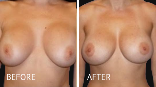 Best cost breast implant removal before and after in Manila Philippines #5