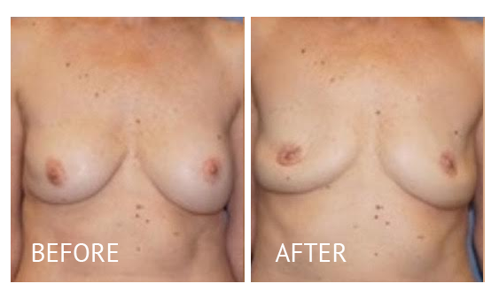 Best cost breast implant removal before and after in Manila Philippines #6