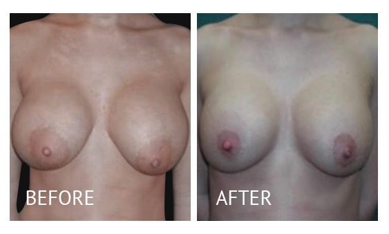 Best cost breast implant removal before and after in Manila Philippines #7
