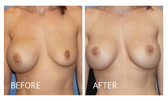 Best cost breast implant removal before and after in Manila Philippines #8