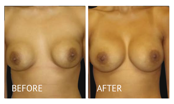 Best cost breast implant removal before and after in Manila Philippines #9