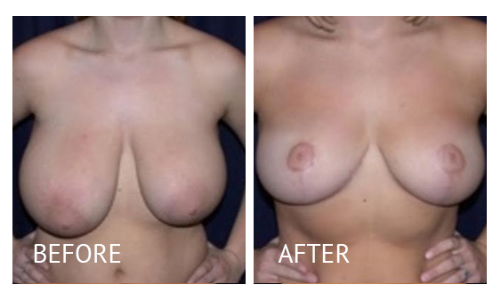 Best cost breast reduction before and after in Manila Philippines #1