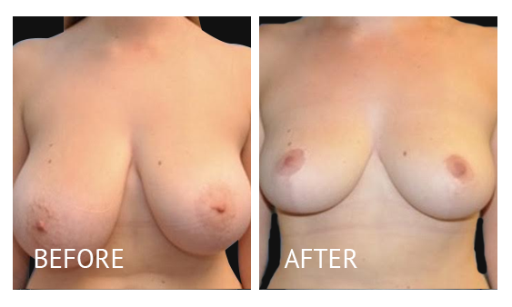 Best cost breast reduction before and after in Manila Philippines #10