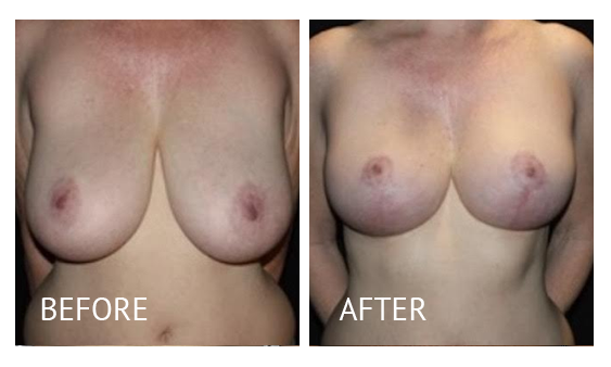 Best cost breast reduction before and after in Manila Philippines #3