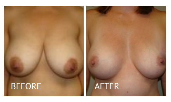 The Breast Surgery Center Philippines Best cost breast lift before and after in Manila Philippines #30