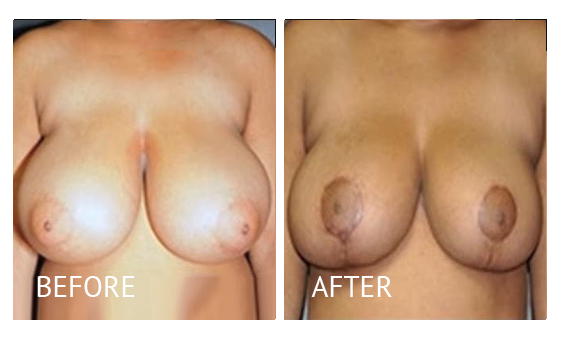 Best cost breast reduction before and after in Manila Philippines #4