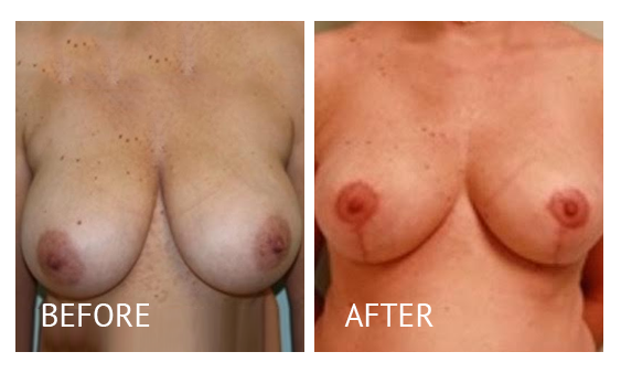 Best cost breast reduction before and after in Manila Philippines #6