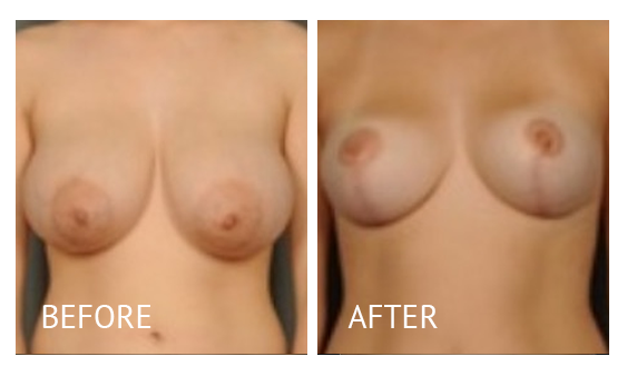 Best cost breast reduction before and after in Manila Philippines #7