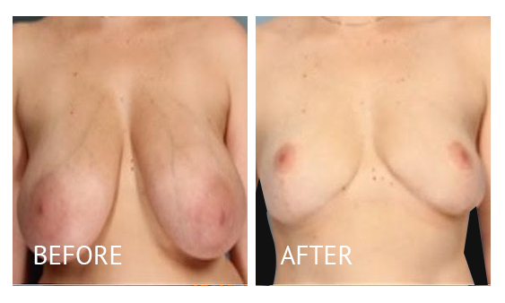 Best cost breast reduction before and after in Manila Philippines #8