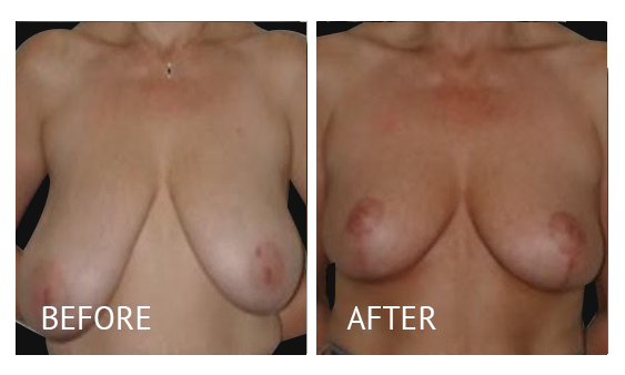 Best cost breast reduction before and after in Manila Philippines #9