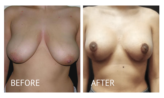 Best cost breastlift before and after in Manila Philippines #11