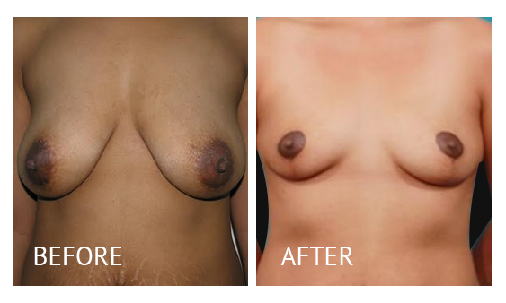 Best cost breastlift before and after in Manila Philippines #12