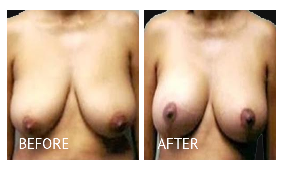 Best cost breastlift before and after in Manila Philippines #13