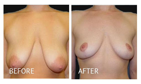 Best cost breastlift before and after in Manila Philippines #14