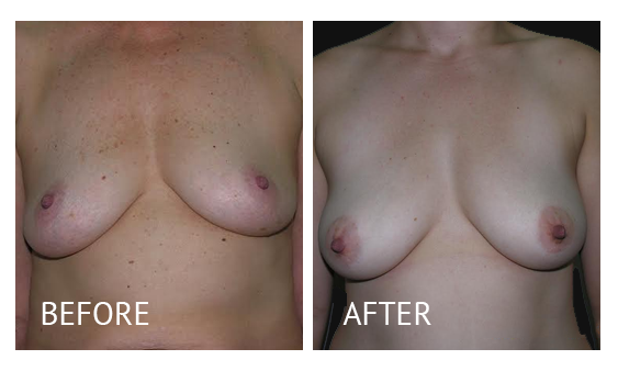 Best cost breastlift before and after in Manila Philippines #2