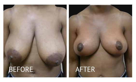 The Breast Surgery Center Philippines Best cost breast lift before and after in Manila Philippines #28