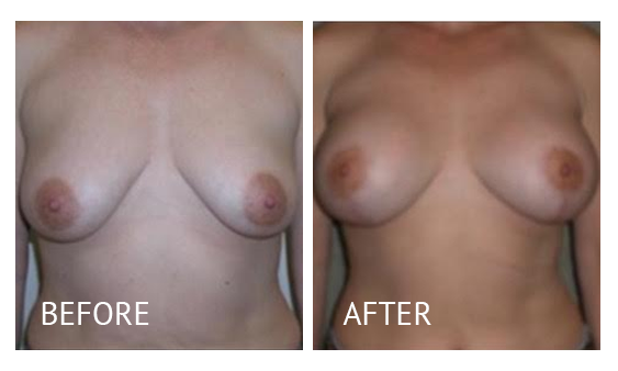 The Breast Surgery Center Philippines Best cost breast lift before and after in Manila Philippines #29