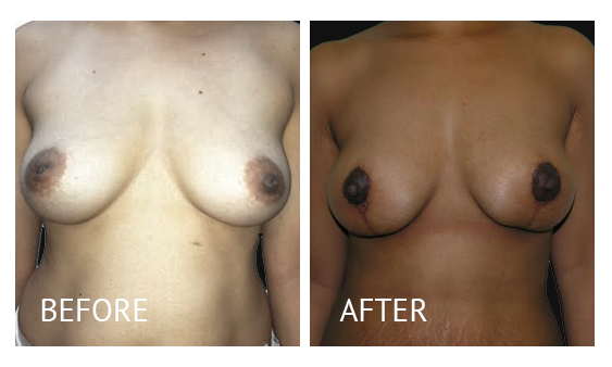 Best cost breastlift before and after in Manila Philippines #3