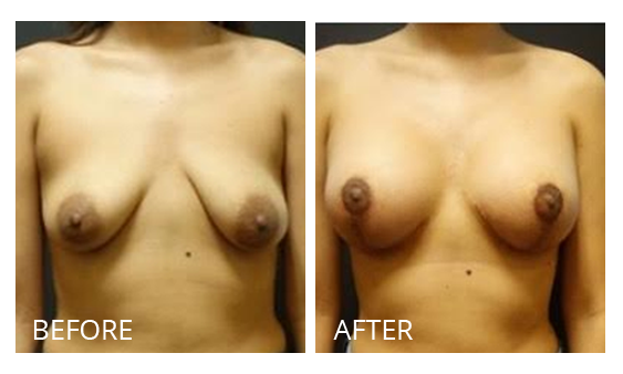 The Breast Surgery Center Philippines Best cost breast lift before and after in Manila Philippines #31