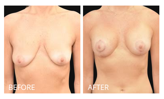 The Breast Surgery Center Philippines Best cost breast lift before and after in Manila Philippines #32