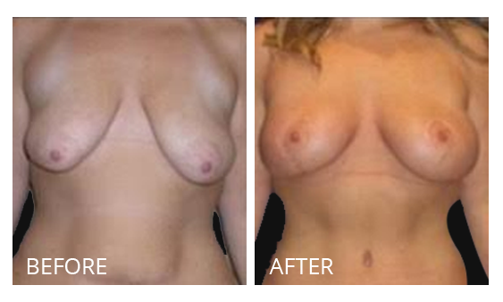 The Breast Surgery Center Philippines Best cost breast lift before and after in Manila Philippines #33