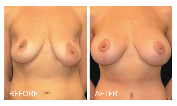 The Breast Surgery Center Philippines Best cost breast lift before and after in Manila Philippines #34
