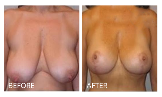 The Breast Surgery Center Philippines Best cost breast lift before and after in Manila Philippines #35