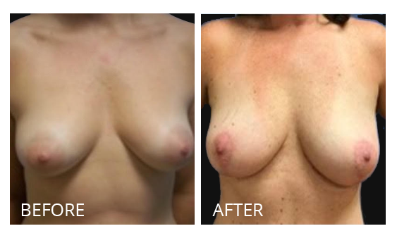 The Breast Surgery Center Philippines Best cost breast lift before and after in Manila Philippines #36