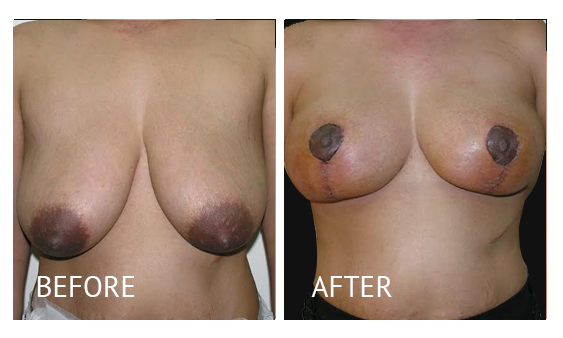 Best cost breastlift before and after in Manila Philippines #4