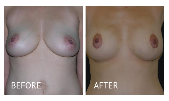 Best cost breastlift before and after in Manila Philippines #6