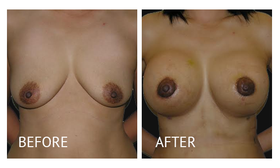 Best cost breastlift before and after in Manila Philippines #7